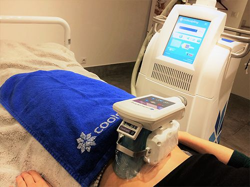 démonstration machine Coolsculpting